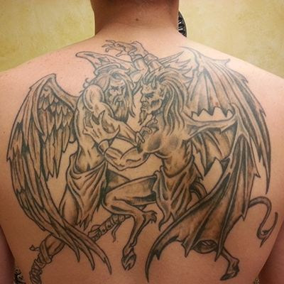 Can You remove big tattoos