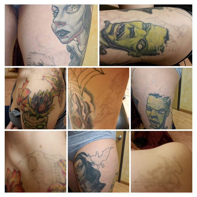 Tattoo Removal vs Cover Up